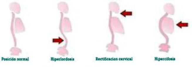 EVITA EL DOLOR DE ESPALDA ....ENTRENANDO!!!