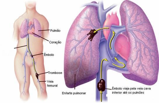 Profilaxis del tromboembolismo venoso. Guía PRETEMED 2007