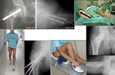 Tratamiento de las fracturas Graves
