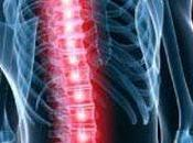 espondilitis anquilosante (ea) fisioterapia terve lucha canaria