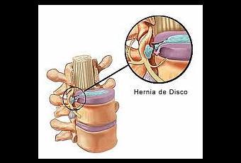 Que pasará a la hernia sheynogo del departamento de la columna vertebral