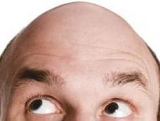 Sale origen calvicie masculina